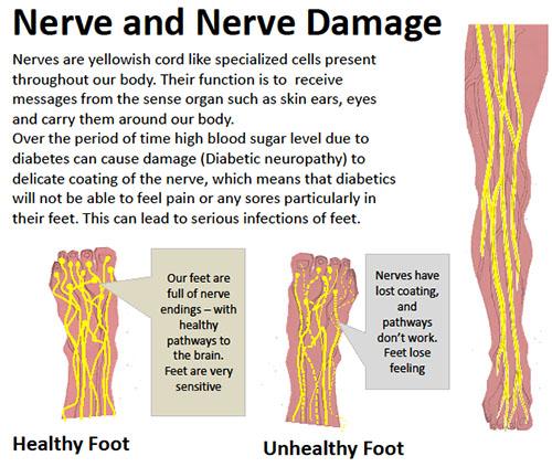 nerve damage in neuropathy