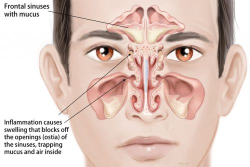 Fungal Sinus Infection